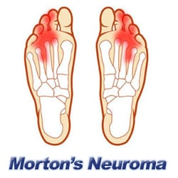Morton's Neuroma Pain in the Foot