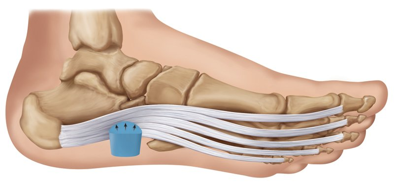 Fascia Bar support for heel pain