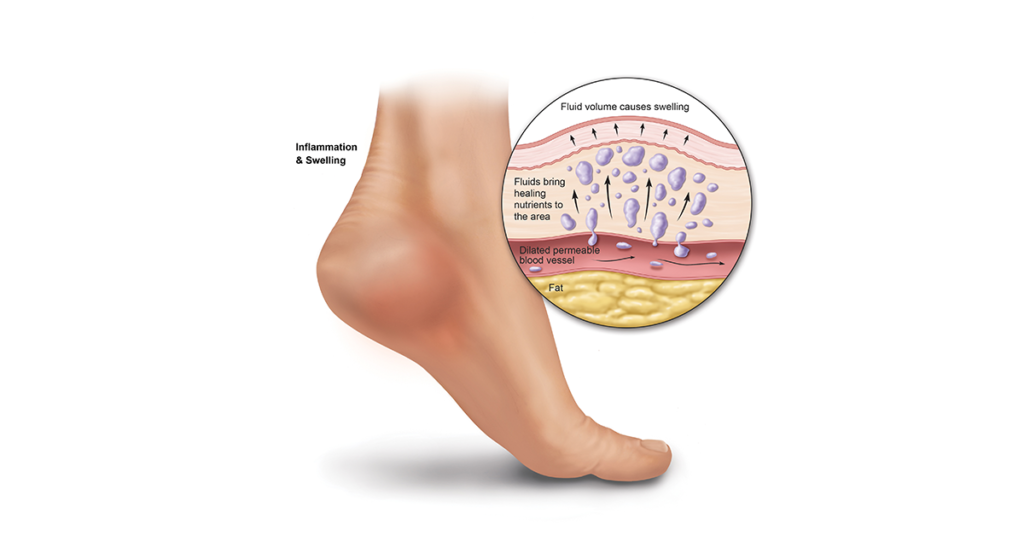 Swelling and inflammation caused by plantar fasciitis