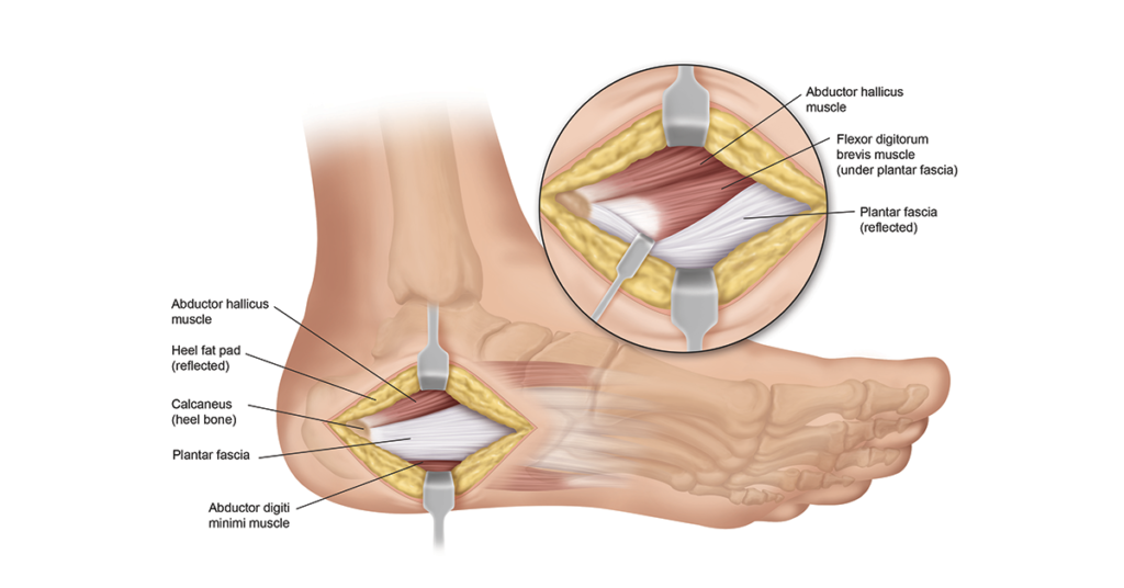 plantar fasciitis surgery & recovery info | heel that pain, Skeleton