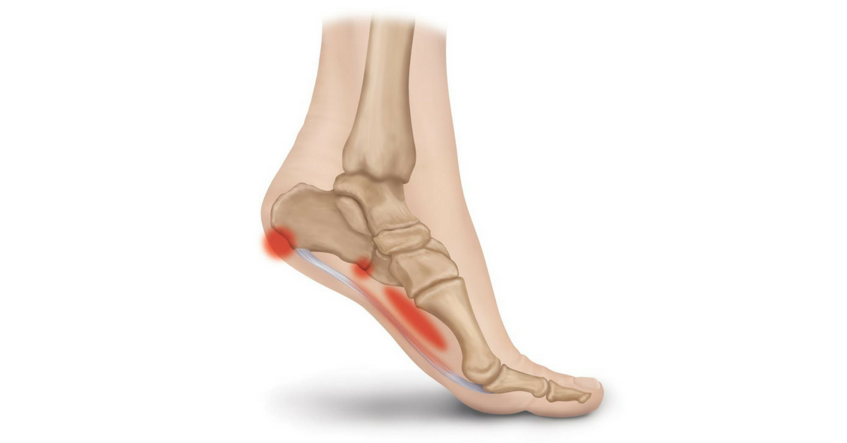 The Consequences Of Leaving Plantar Fasciitis Untreated Heel That Pain